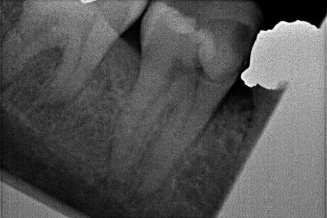 Druhá dolní pravá stolička s hlubokým kazem zasahující zubní nerv
